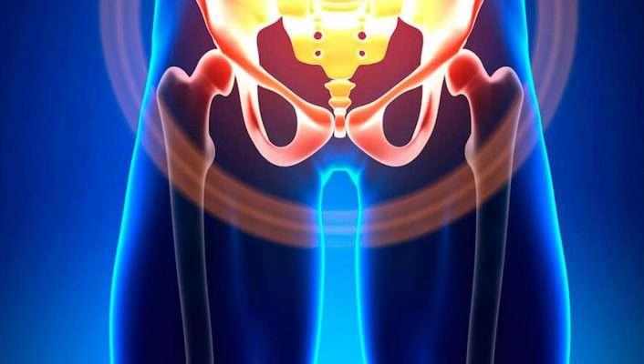 pubalgia | osteopatía de pubis